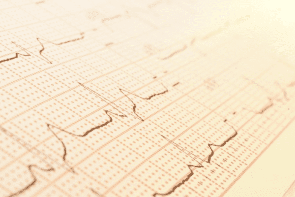 what is the role of ekg testing in primary care